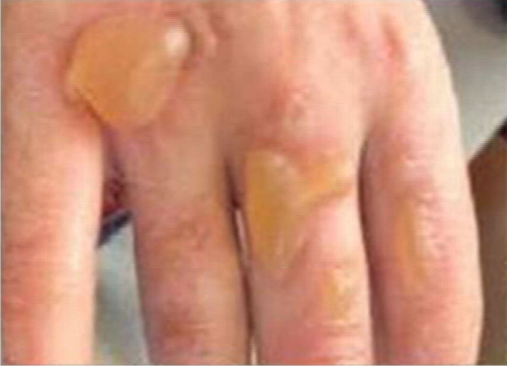 Second Degree burns caused by alcohol hand gel igniting